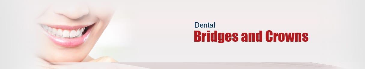 dental crowns and bridges pdf