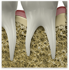 Root Canal Therapy in Spokane, WA