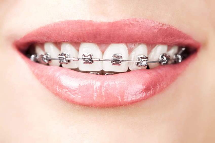 A patient's mouth showing metal braces on their upper teeth