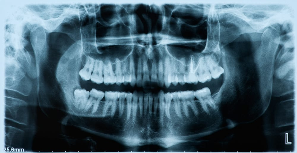 Full mouth x-ray image